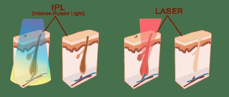 Différence entre les techniques laser et l'IPL