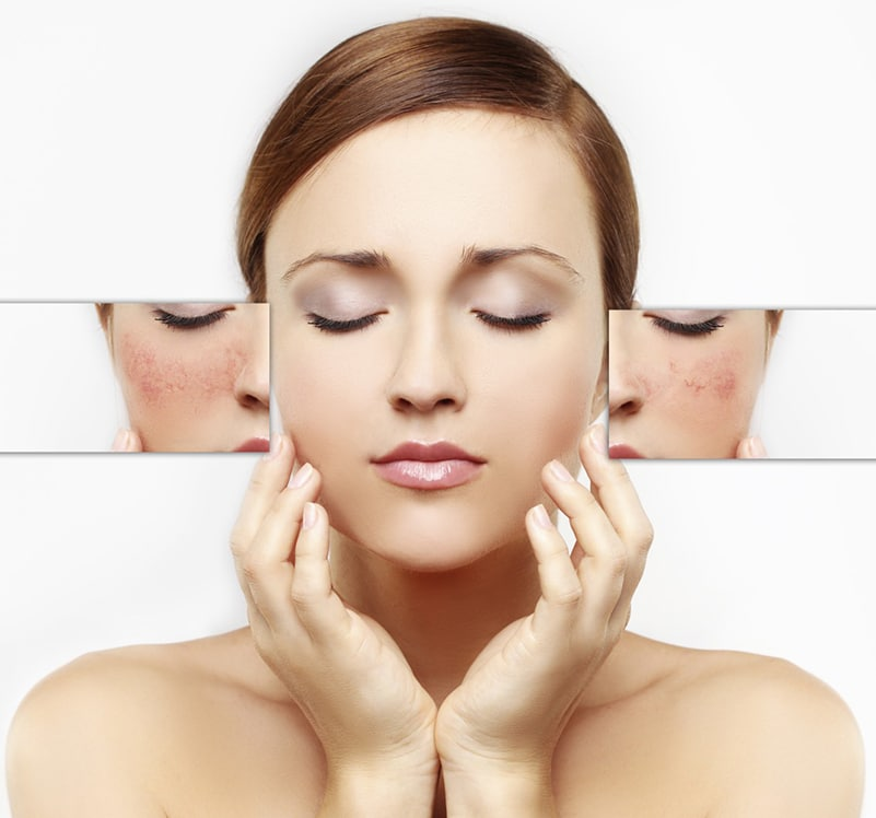 peau-sensible-et-couperosee-clinique-soins-corps